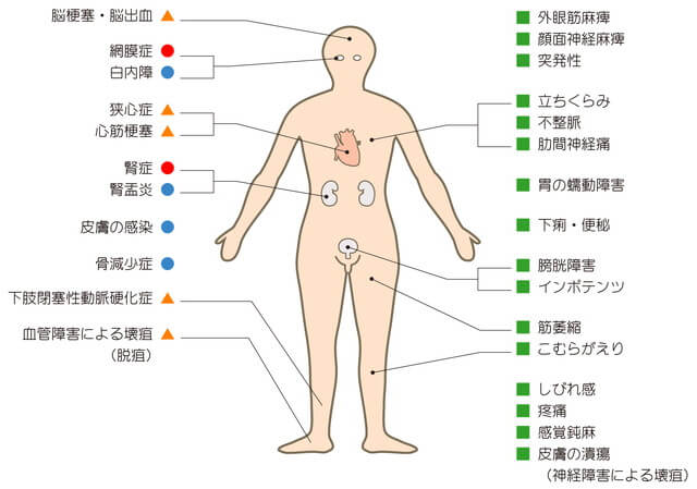 糖尿病の初期症状